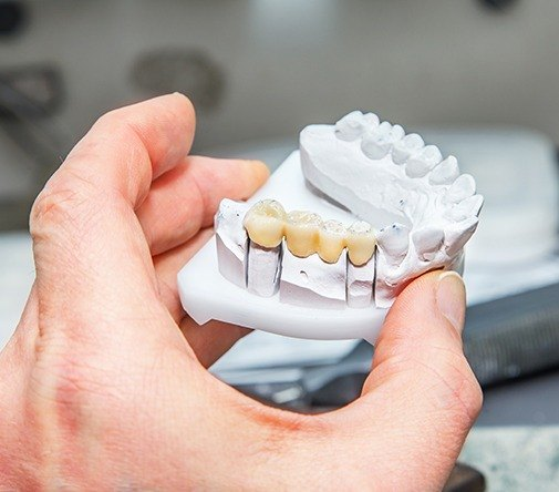 dentist holding dental bridge example