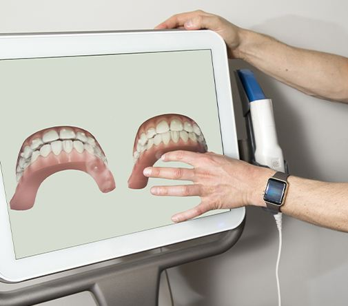 digital teeth on computer screen