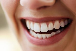 Your dentist in Marysville offers fluoride varnish for a healthy smile.