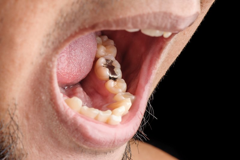 man with tooth fillings in Marysville